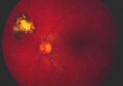 Évolution de l'atteinte ophtalmologique des enfants atteints de ...