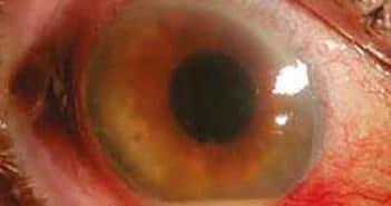 Endophtalmie après chirurgie de la cataracte