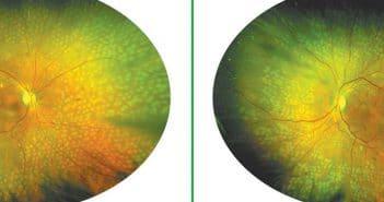 Intérêt du laser Navilas 577s dans le traitement de la rétinopathie diabétique périphérique