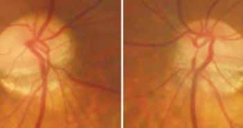 Le nerf optique du myope fort: imagerie et pathologie