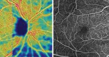 L'OCT-angiographie dans le glaucome