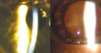 Le glaucome pigmentaire