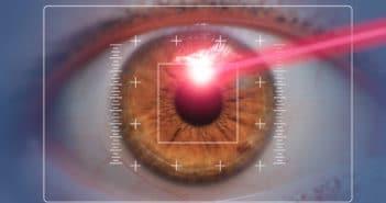 La chirurgie réfractive actuelle chez le myope